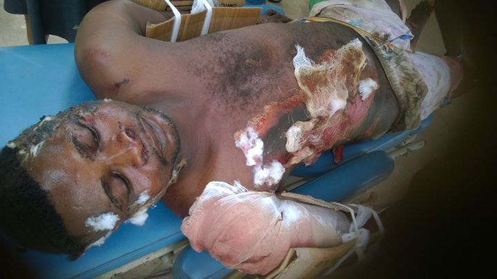 Police Van Knocks Down Bus Driver Over 'Egunje' As Angry Drivers Club Inspector To Coma
