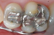 Stakeholders Call For The End Of Dental Amalgam Use